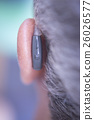 Modern digital hearing aid 26026577