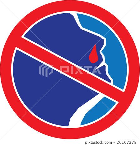 Stop Bleeding Nose 26107278