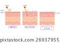 skin, cross-section, diagram 26937955