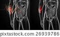 3d render medical illustration of the arm pain 26939786