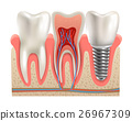 Dental Implants Anatomy Closeup Model  26967309