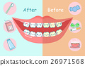 Before and after teeth 26971568
