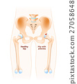 Hip joint with osteoarthritis 27058648