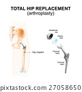 Total hip replacement or arthroplasty. 27058650