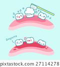 concept, dental, gum 27114278