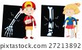 Boy and girl with broken bones 27213892