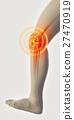 膝盖 关节 骨头 27470919