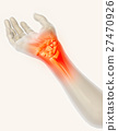Wrist painful - skeleton x-ray. 27470926