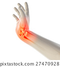 Wrist painful - skeleton x-ray. 27470928