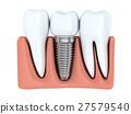 牙齿 植入 三维 27579540