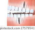 牙齿 植入 三维 27579541