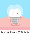 卡通 牙科 植入 27581414