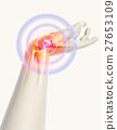Wrist painful - skeleton x-ray. 27653109