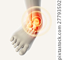 Ankle painful - skeleton x-ray. 27793502