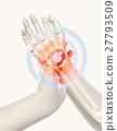 Wrist painful - skeleton x-ray. 27793509