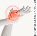 Wrist painful - skeleton x-ray. 27793510