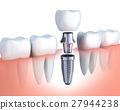 row tooth and Dental implant 27944238