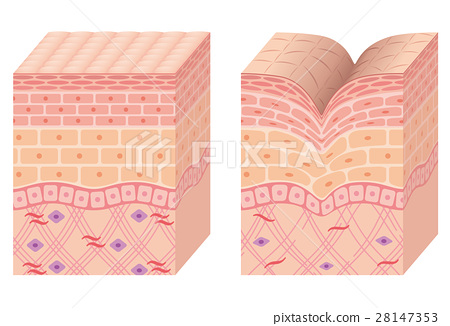 皱褶 折痕 皱纹 28147353