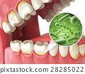 Bacterias and viruses around tooth. Dental hygiene 28285022