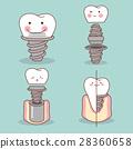 밑그림, 치아, 이 28360658