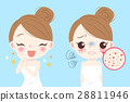acne problem skin 28811946