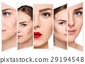 The young female face. Antiaging and thread 29194548