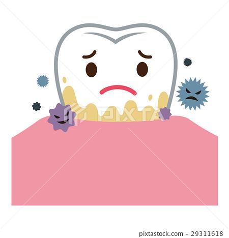 periodontal disease, tooth, dental calculus 29311618