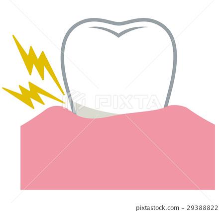 periodontal disease, tooth, medical 29388822