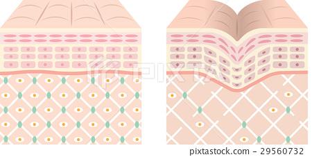 健康的皮膚皺紋皮膚 29560732