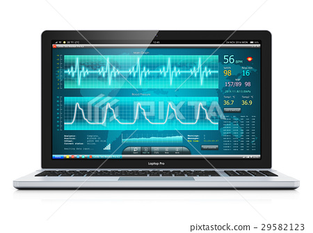 Laptop medical cardiological diagnostic software 29582123