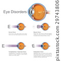 Eye disorders. Vector graphic. 29743806