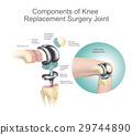 Components of knee replacement surgery joint. 29744890
