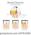 Dental calculus periodontal disease. 29781685