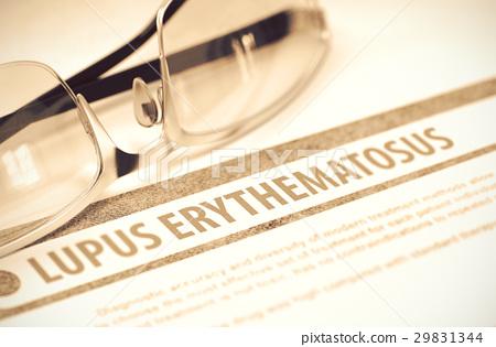 Lupus Erythematosus. Medicine. 3D Illustration. 29831344
