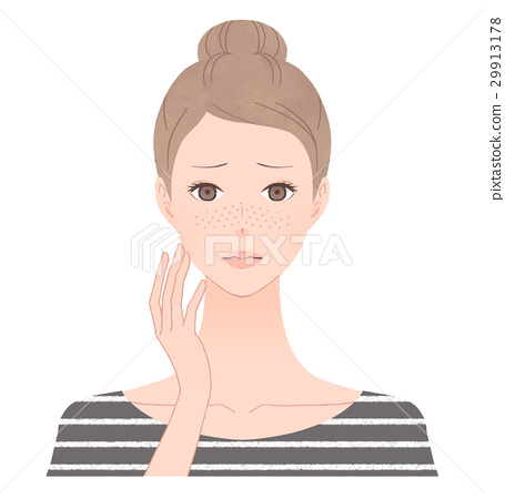 Women suffering from freckles 29913178