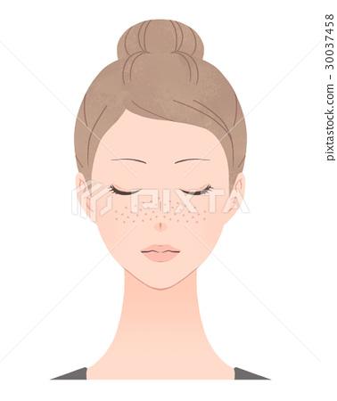 freckles 30037458