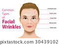 Types of facial wrinkles 30439102