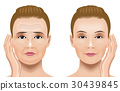 Face wrinkle treatment Before after 30439845