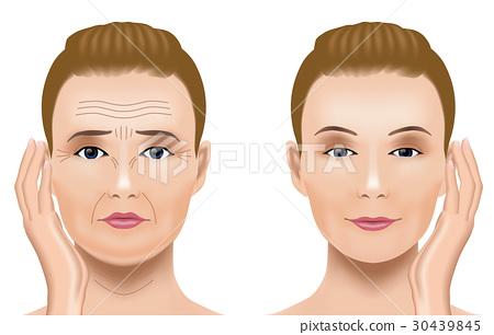 얼굴의 주름 치료 비포 애프터 30439845