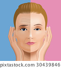 Face wrinkle treatment Before after 30439846