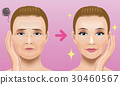 Face wrinkle treatment Before after 30460567