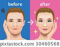 얼굴의 주름 치료 비포 애프터 30460568