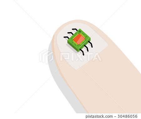Minirobot on Human Finger. 30486056