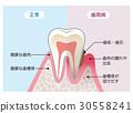 健康牙齒和牙周病牙齒的比較 30558241