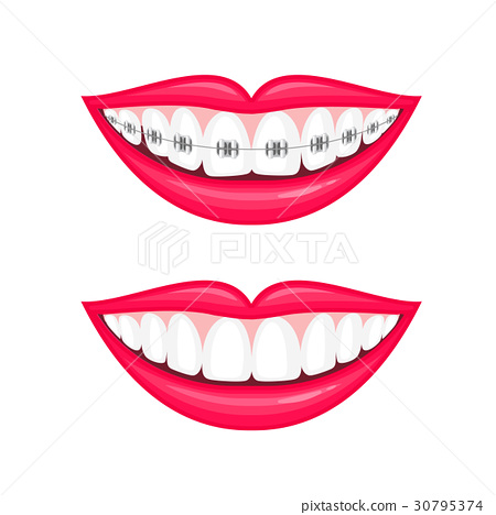 Perfect teeth before and after braces. 30795374