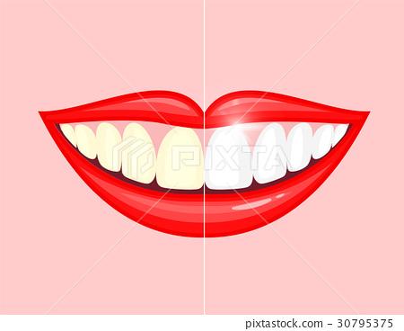 bleaching teeth treatment.  30795375