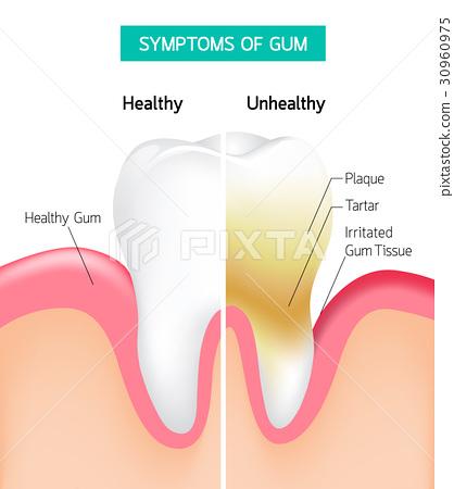 Dental problem health care.  30960975