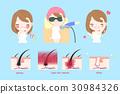laser armpit hair concept 30984326