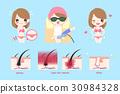 laser bikini line hair concept 30984328
