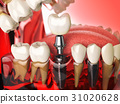 Tooth implant in the model human teeth 31020628